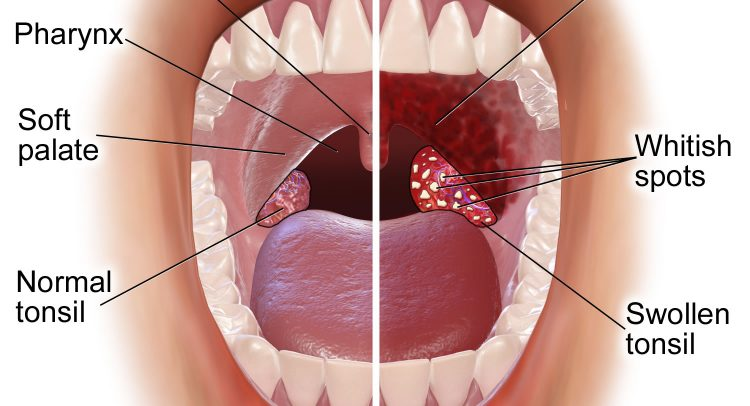 Tonsils Facts Function Treatment My Vue News