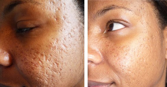 Treating Acne Scars My Vue News
